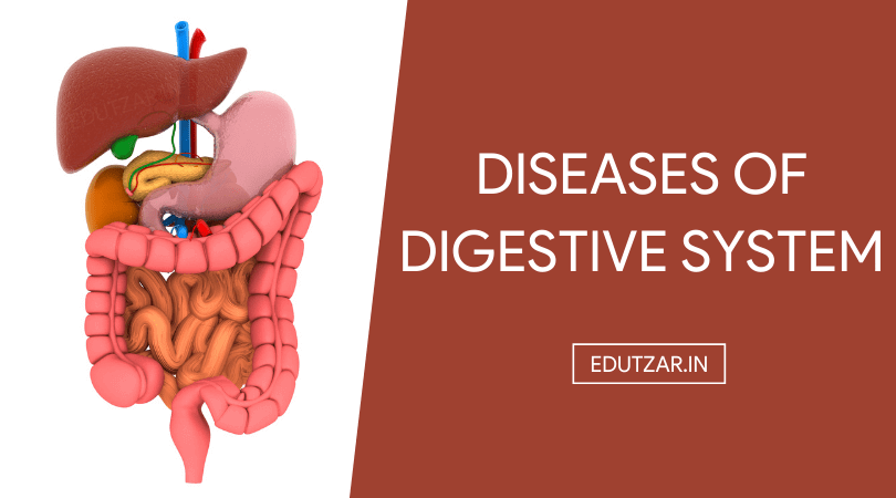 Diseases of Digestive System in Hindi