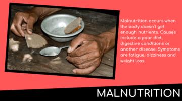 कुपोषण (Malnutrition in Hindi) : कुपोषण क्या है – कुपोषण की परिभाषा और सम्बन्धी व्याधियाँ